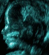 Ultrasound may pose danger to fetuses